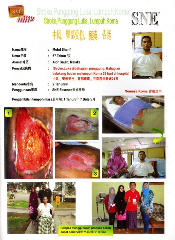 Sne Capsule patient for paralyze,stroke and butt problem