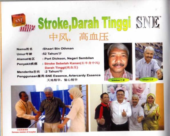 Stroke testimony - Shaari